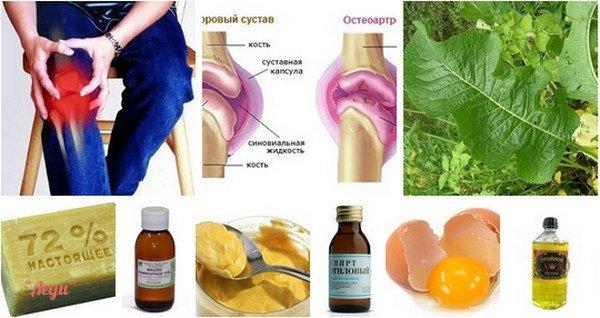 Народные средства при боли суставов операция по установке коленного сустава в жодинской цгб