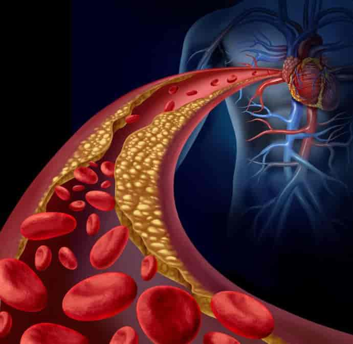 Холестерин: Мифы и Реальность
